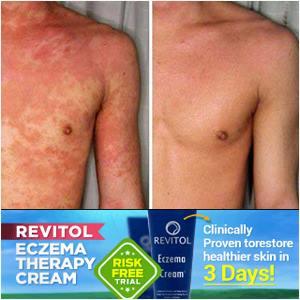 eczema cream testimonials