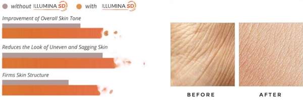 illumina sd anti-aging cream