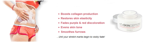 Skinception Stretch Mark Cream Natural Safe Therapy